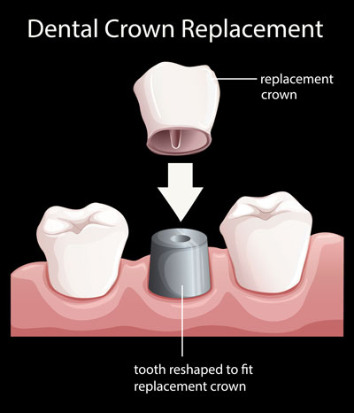 Diagram of how dental crown replacements work