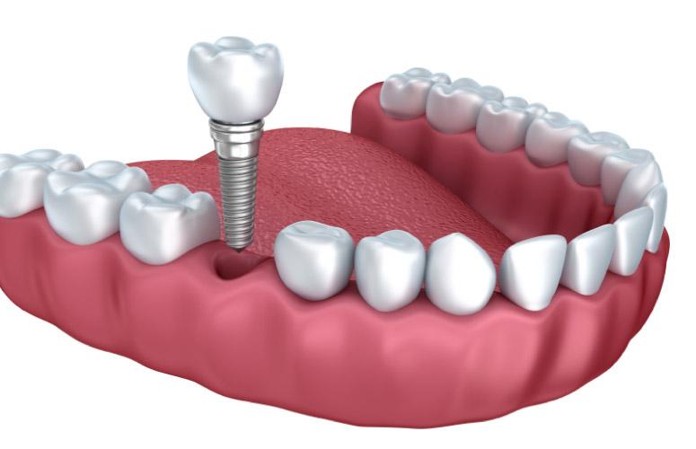 dental implant model illustrating the procedure
