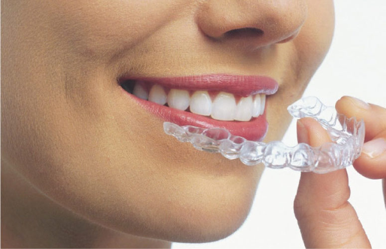 woman inserting ClearCorrect aligner orthodontics